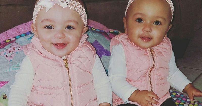 უიშვიათესი შემთხვევა: ილინოისში სხვადასხვა კანის ფერის მქონე ტყუპები დაიბადნენ