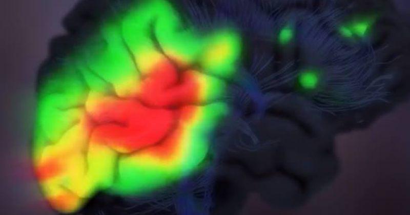 21 სექტემბერი ალცჰაიმერის დაავადების შესახებ ცნობიერების ამაღლების საერთაშორისო დღეა