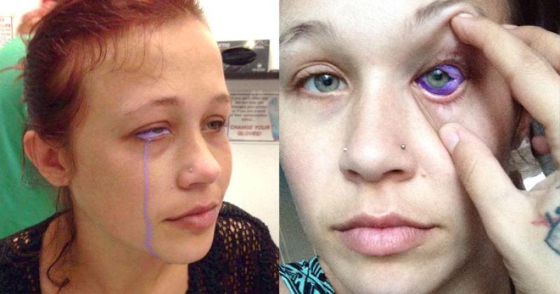 თვალის ტატუმ 24 წლის მოდელი ნაწილობრივ დააბრმავა