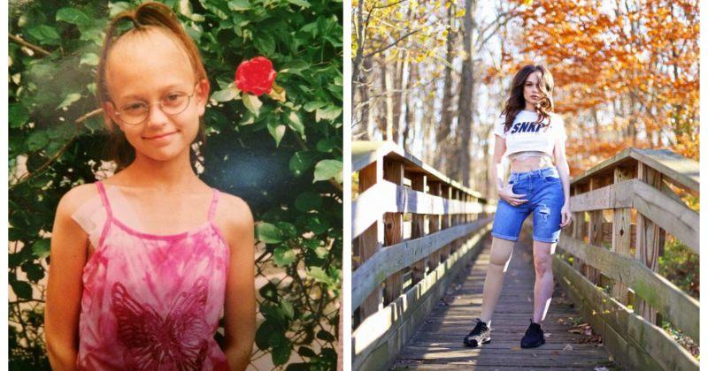 გოგო, რომელსაც 11 წლის ასაკში ფეხის ამპუტაცია დასჭირდა, 20 წლის შემდეგ მოდელი გახდა
