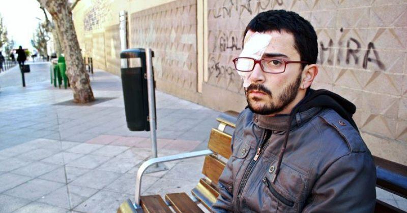 ესპანეთში რეზინის ტყვიით თვალის დაკარგვისთვის მამაკაცს 200 000 ევროიანი კომპენსაცია ერგო