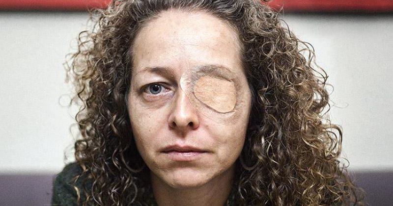 ესპანეთში რეზინის ტყვიით დაბრმავებულმა ქალმა კომპენსაციად 260 000 ევრო მიიღო