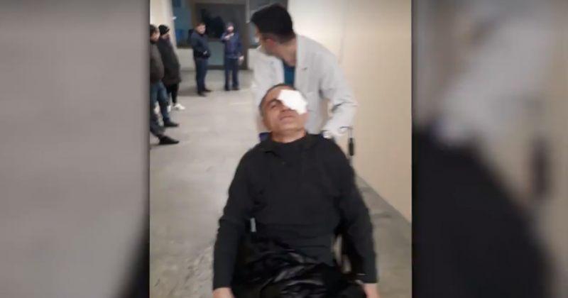აქციის დაშლისას ერთმა პირმა თვალის არეში დაზიანებები მიიღო