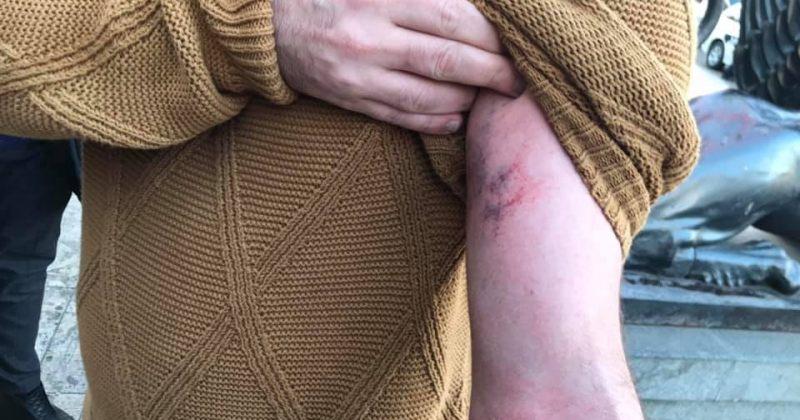 საკრებულოს დეპუტატი პოლიციამ საკრებულოდან ძალის გამოყენებით გაიყვანა, მას დაზიანებები აქვს