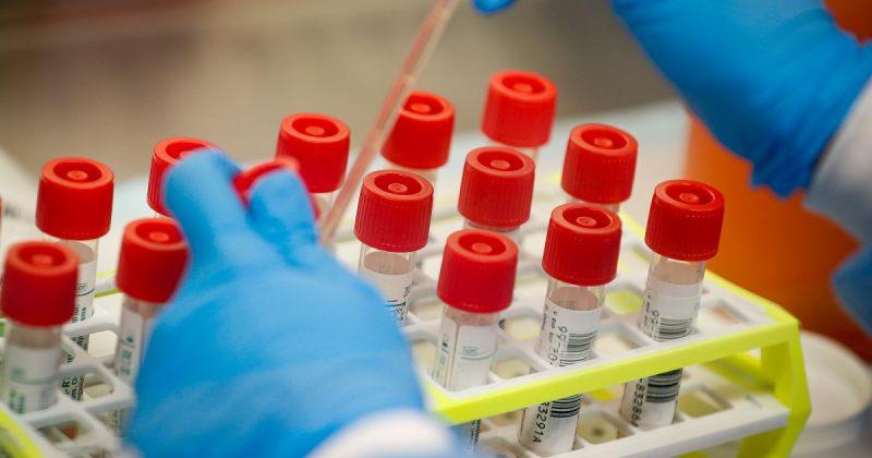 ვის ჩაუტარდება გეგმურად სავალდებულო PCR ტესტირება - მთავრობის დადგენილება