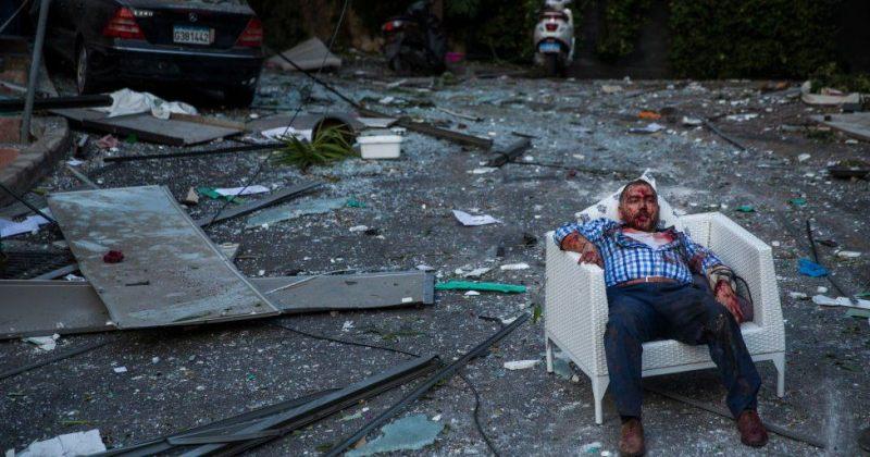 ბეირუთი დამანგრეველი აფეთქების შემდეგ - ფოტორეპორტაჟი