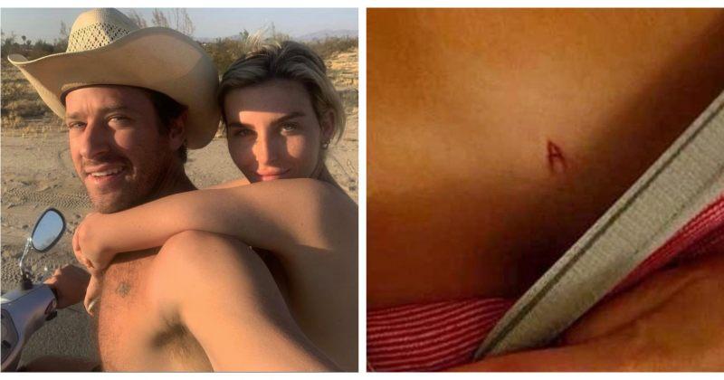 """არმი ჰამერის ყოფილი მეგობარი ქალის თქმით, მსახიობმა სხეულზე ასო """"A"""" ამოაჭრა"""