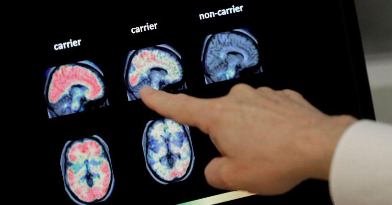 აშშ-მ ალცჰაიმერის გამომწვევი მიზეზის სამკურნალო პრეპარატი დაამტკიცა